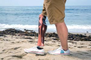 Protesi, Ortopedia